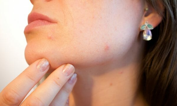 Common Myths About Acne that You Should Avoid